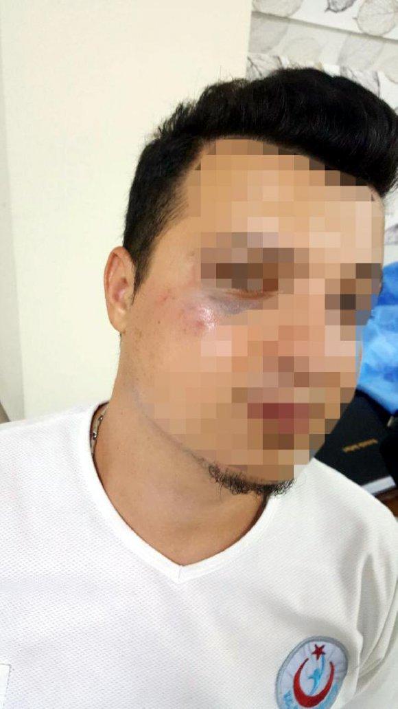 Hasta almaya giden 112 ekibine saldıran 3 şüpheli gözaltına alındı