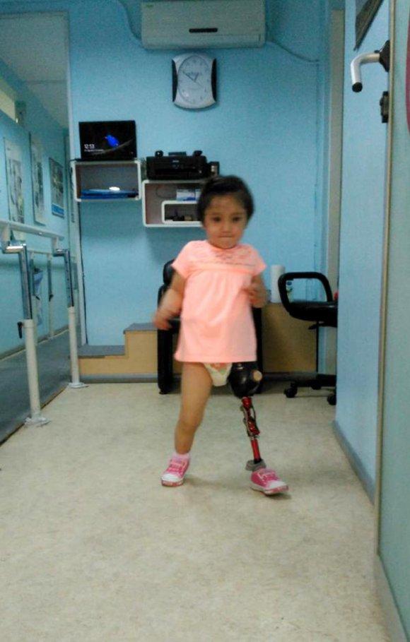 Özge bebek yeni protez bacağıyla daha az düşüyor